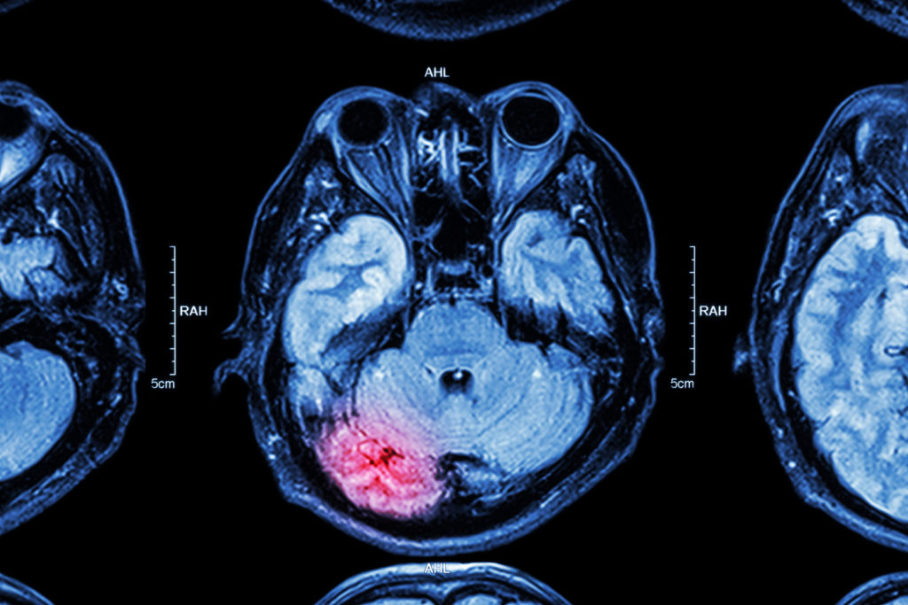 Picture of a brain injury X-Ray